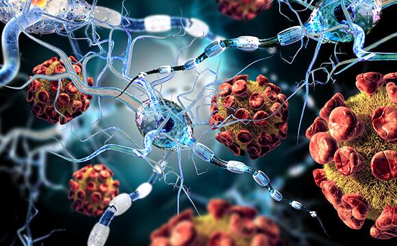 גליומה – גידול מוח